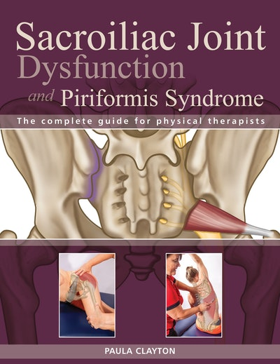 Si Joint Dysfunction And Piriformis Syndrome