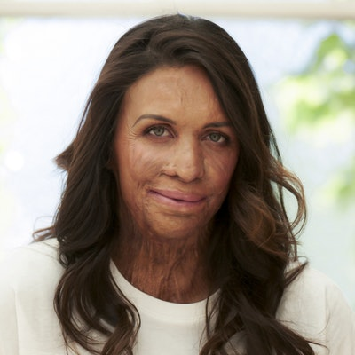 portrait photo of Turia Pitt